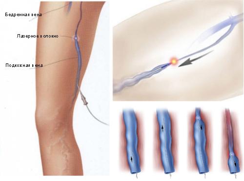Как правильно мазать ноги при варикозе